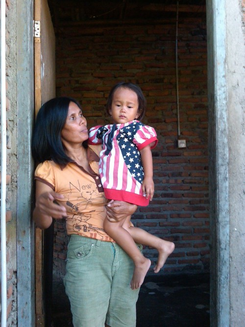 Aisah Rani Putri (3,5) yang tidak memiliki anus.
