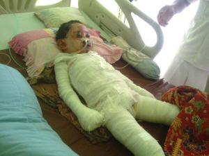 Sakar yang mendapat perawatan intensif di ruangan HCU RSUD Palabuhanratu