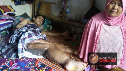 Imad (24) terbaring selama satu tahun karena penyakit yang dideritanya. palabuhanratuonline